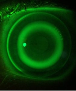 An Ortho-K Retainer on the eye with fluorescein dye