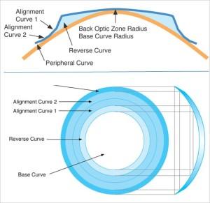 An Ortho-K Reverse Geometry Lens