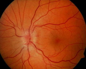 NAION with Optic Disc Swelling