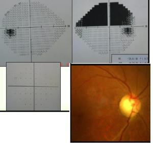 Visual field loss associated with stroke