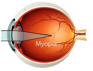 Myopia is caused by an elongated eye