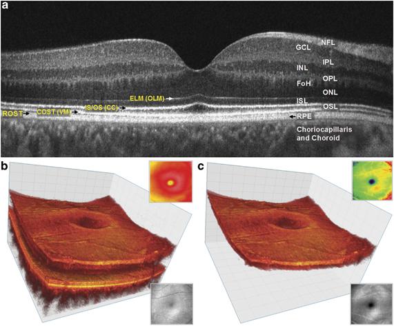 3-D Retinal Imaging